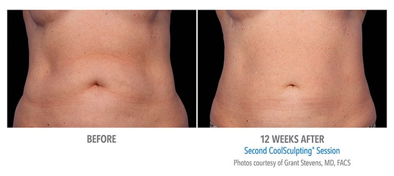 CoolSculpting Example 2 Before & After Image of Female Abs from Front View