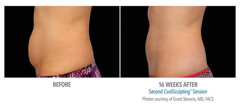 CoolSculpting Example 3 Before & After Image of Female Abs from Side View