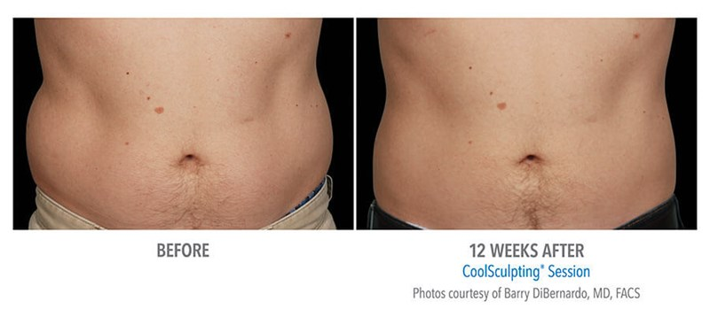 CoolSculpting Example 1 Before & After Image of Male Abs from Front View
