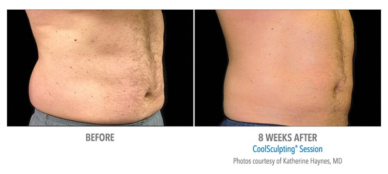 CoolSculpting Example 2 Before & After Image of Male Abs from Side View