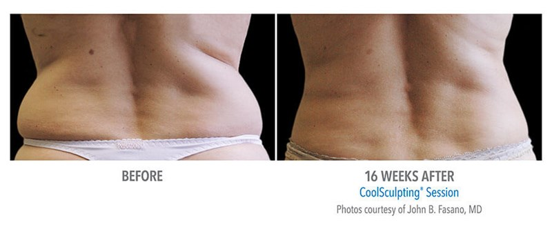 CoolSculpting Example 1 Before & After Image of Female Flanks (Love Handles) from Back View