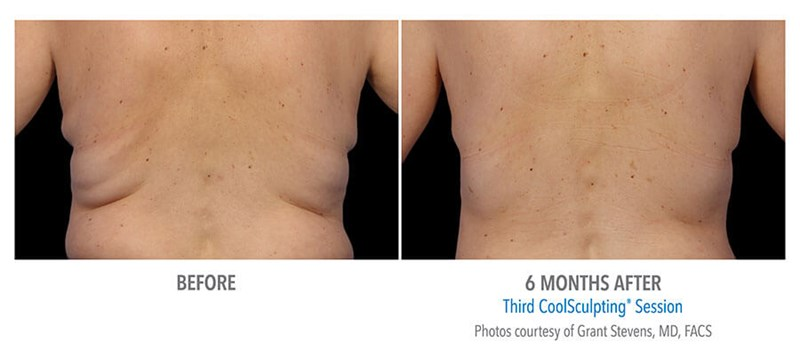 CoolSculpting Example 2 Before & After Image of Female Flanks (Love Handles) from Back View