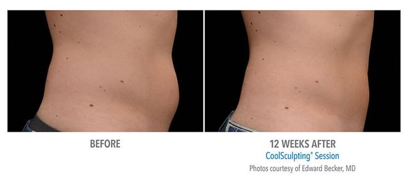 CoolSculpting Example 2 Before & After Image of Male Flanks (Love Handles) from Side View