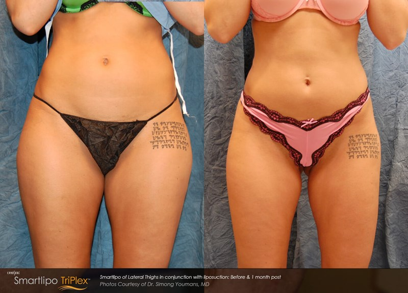 SmartLipo Triplex Example Before & After Image of Female Abdomen from Right Side View 004