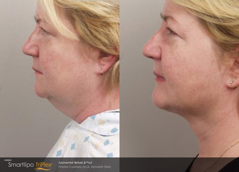 SmartLipo Triplex Example Before & After Image of Female Neck from Left Side View 006