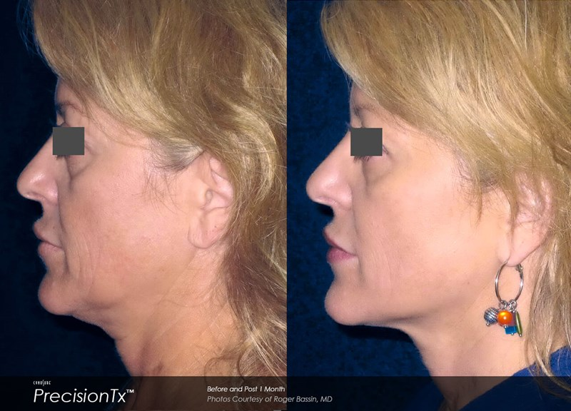 PrecisionTX Example Before & After Image of Female Neck from Left Side View 001