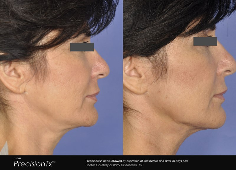 PrecisionTX Example Before & After Image of Female Neck from Right Side View 004