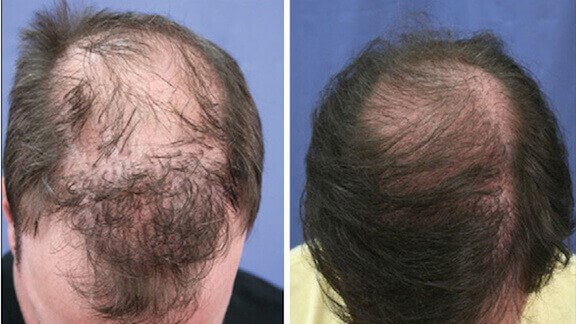 LaserCap Example Before & After Image of White Male's Scalp